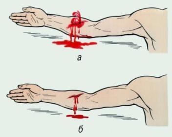 Первая медицинская помощь при кровотечении