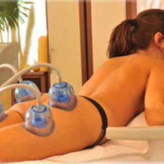 Вакуумный массаж от целлюлита в домашних условиях (онлайн видео урок)