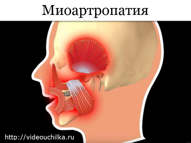 Миоартропатия
