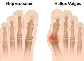 Халюс вальгус
