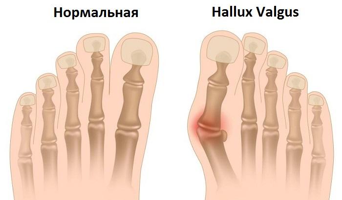 Шишка на большом пальце ноги.  Халюс вальгус