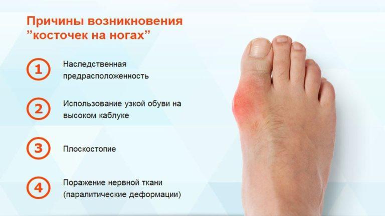 Причины возникновения косточки на ноге