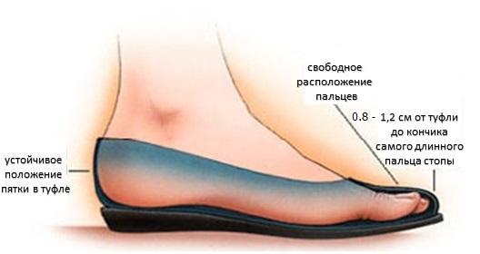 Выбор обуви при вальгусной деформации