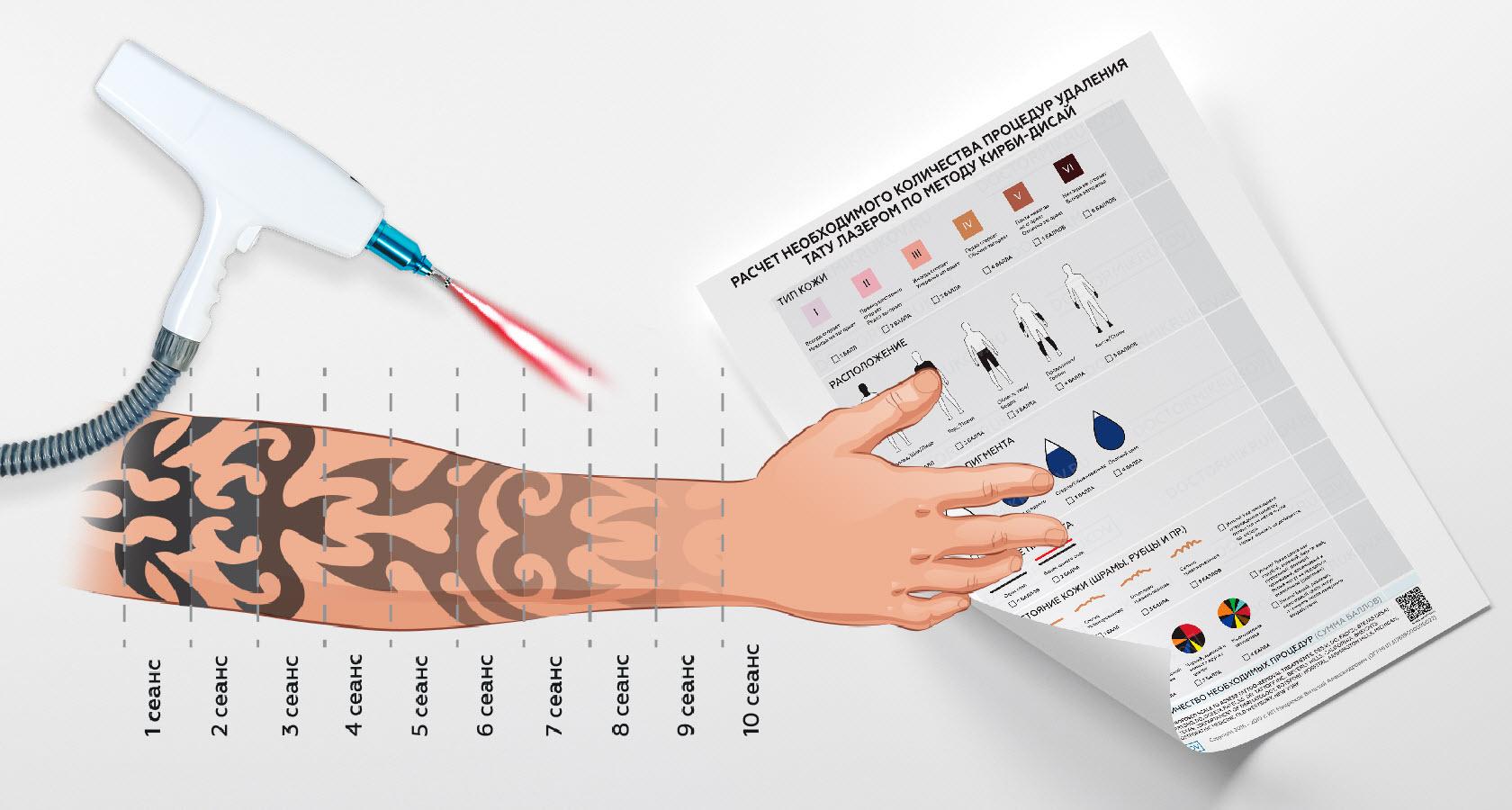 удаления татуировок